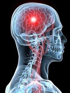 stroke aneurysm SAH BAW Brain Awareness Week enBloom enbloommedia